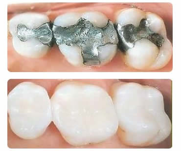 The Debate About Amalgam Fillings