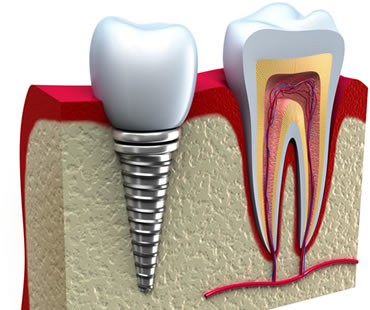 Reaping the Benefits of Dental Implants