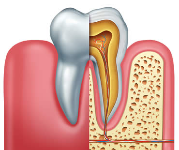 Restoring Your Oral Health Through Root Canal Therapy