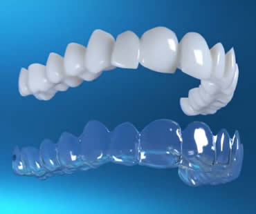 Frequently Asked Questions About Invisalign